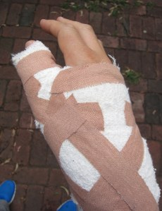 My wrapped up hand.